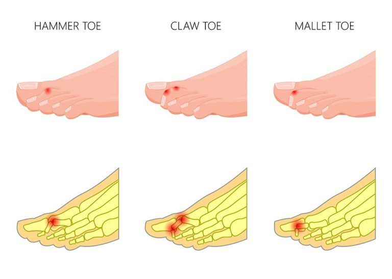graphic of what a Hammer, Claw and Mallet tow look like