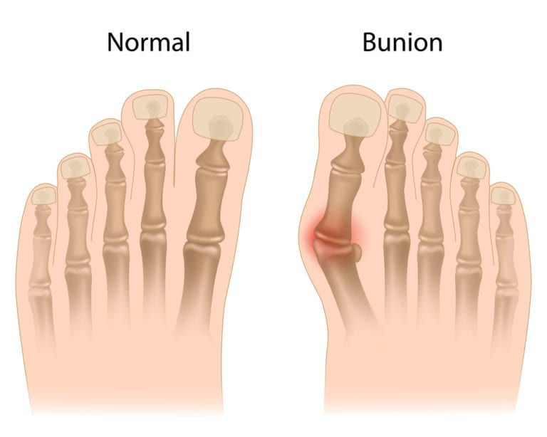 graphic of what a bunion looks like under the skin