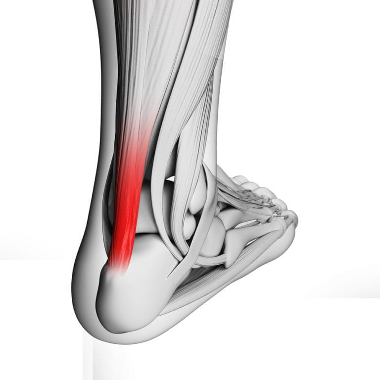 tendon red to show point of pain