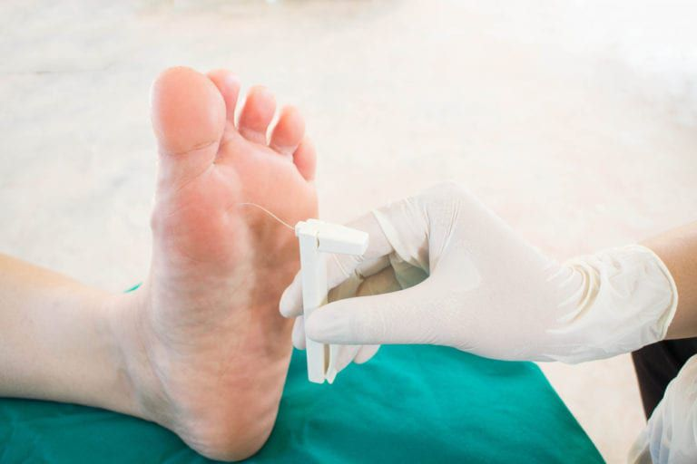 doctor treating a diabetic foot
