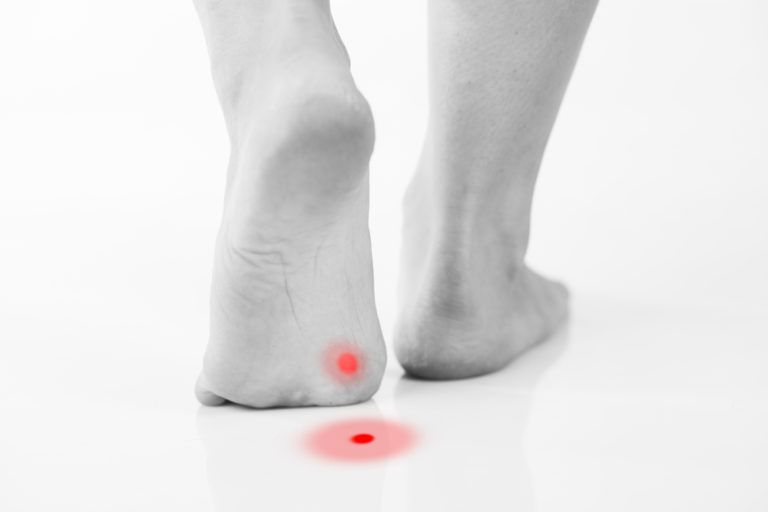 foot mid step with red dots to show where pain occurs