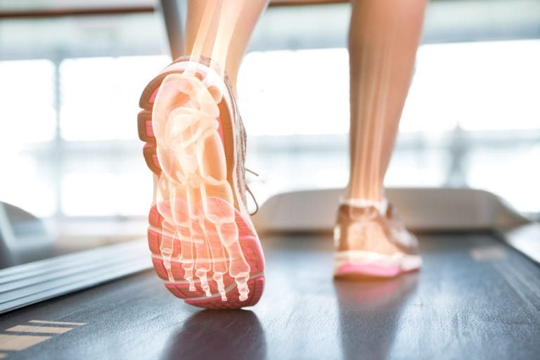 xray view of persons foot bones on a treadmill