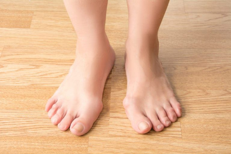 a foot with bunions