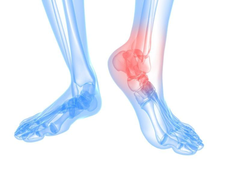 view of ankle bones highlighted in red to show area of pain